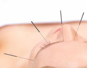 Acupuncture, Alternative Therapy